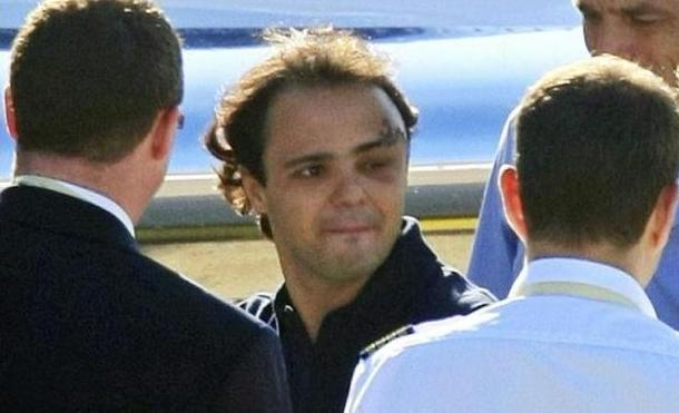 Foto e video intervista a Massa dopo l'incidente